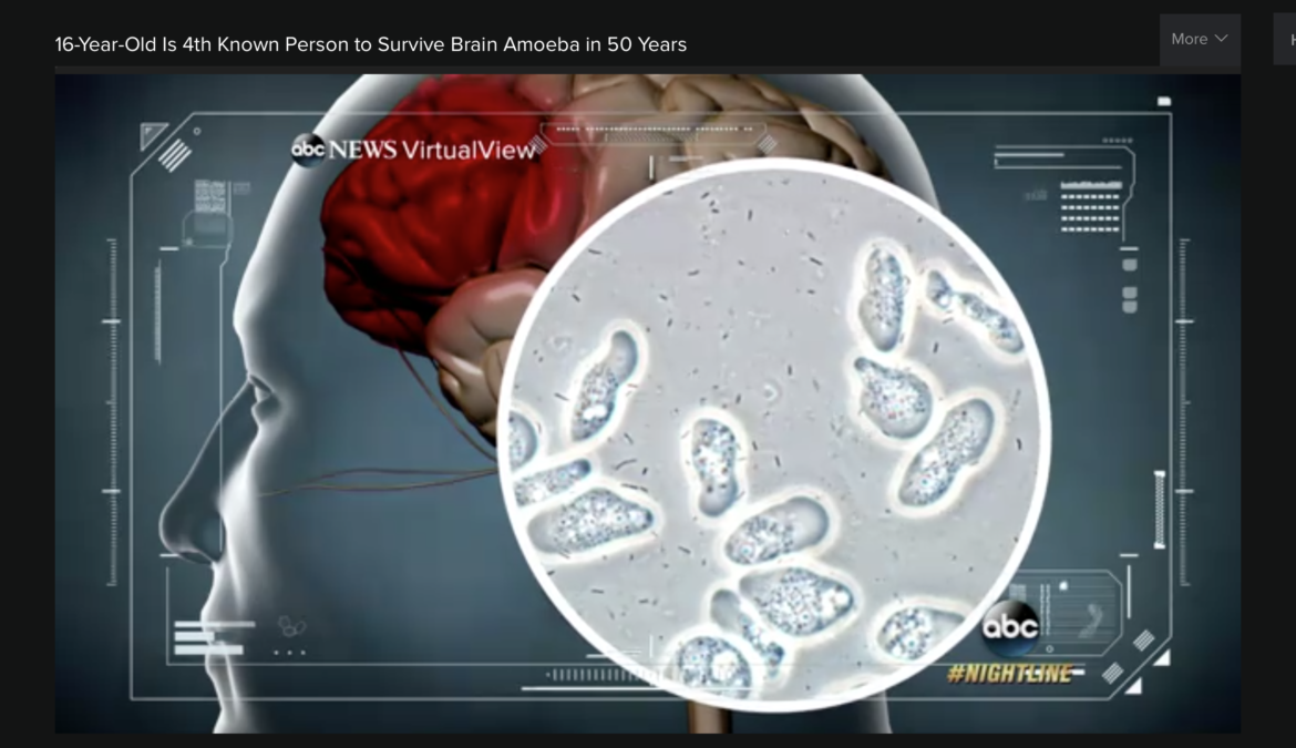ABC News - Sebastian DeLeon Survives Brain Eating Amoeba - Naegleria fowleri Amoeba
